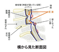 名古屋 脊柱管狭窄症 りんご治療院-asdlsgkl