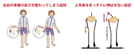 体重をかけれない 名古屋-1607