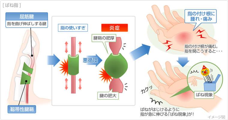 腱鞘炎の説明図