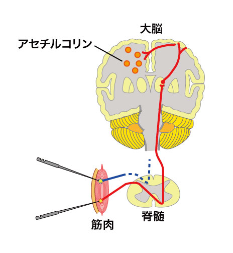 鍼灸で脳の機能の改善