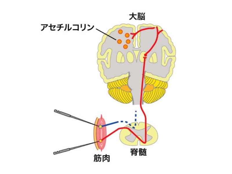 脳に伝わる鍼刺激