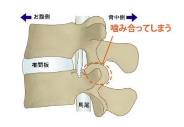 腰椎椎間関節