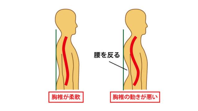 腰を反る痛み